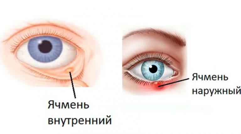 Vidy-yachmenya-pri-beremennosti