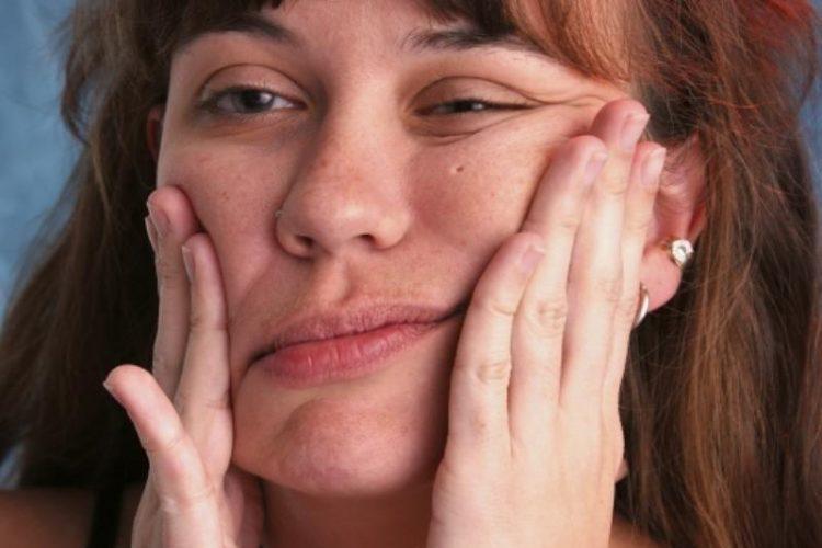Cимптом лагофтальма
