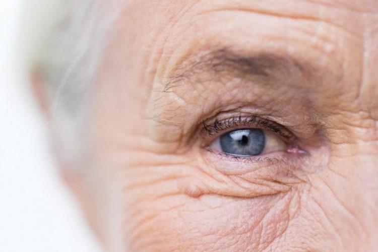 Ядерная катаракта глаз у пожилых