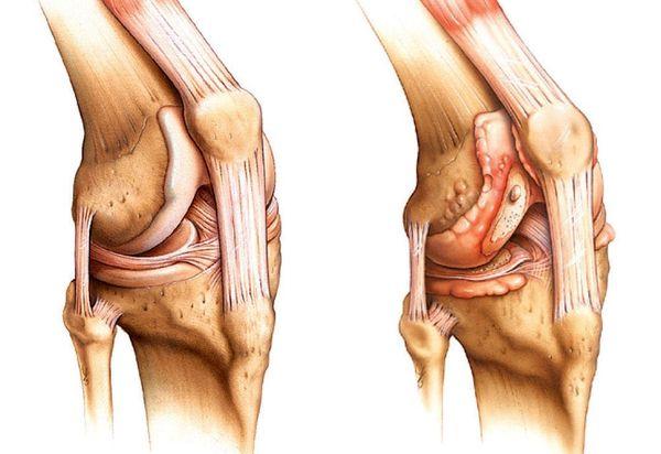 Диагностика определения артрита