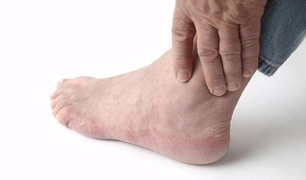 симптомы аллергического артрита