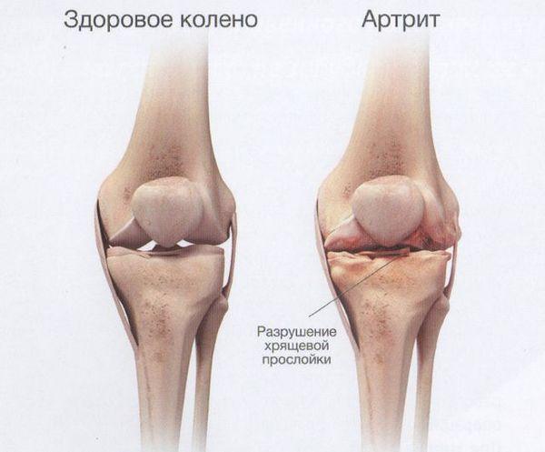 Посттравматическая разновидность артрита