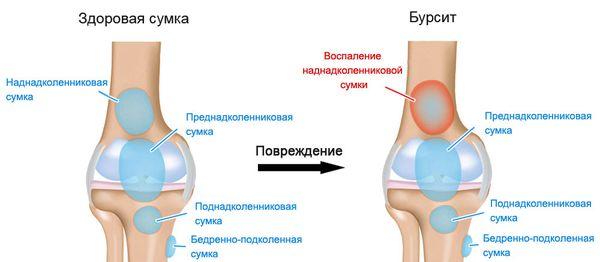 Бурсит и здоровая сумка колена