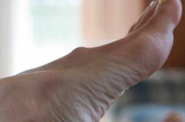 lechenie-i-udalenie-gigromy-stopy